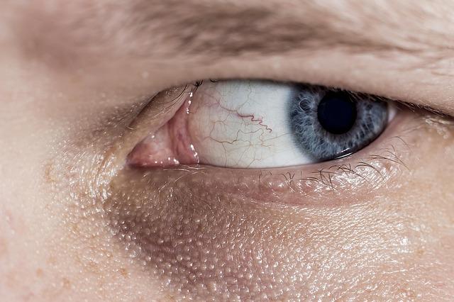 šilhání oka